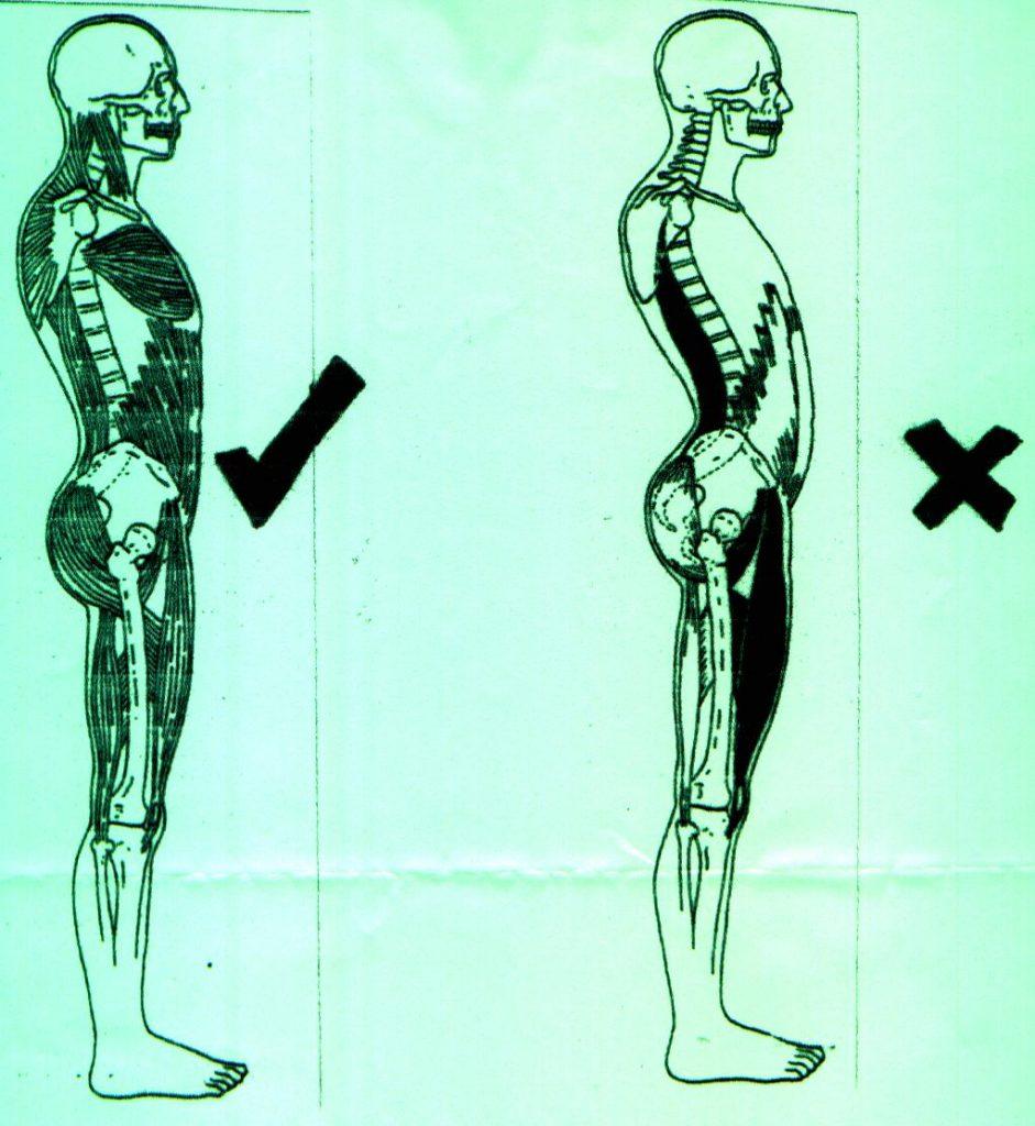 Postural Correction, Spine Health