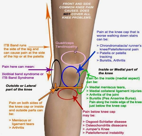 Knee Pain Explained