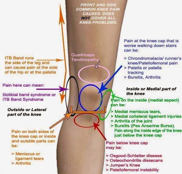 Knee Pain Explained